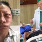 Operasi Plastik di Jakarta Kok Katanya Dipukuli di Bandung?